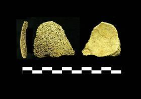 Probabile caso di talassemia su un frammento di volta cranica